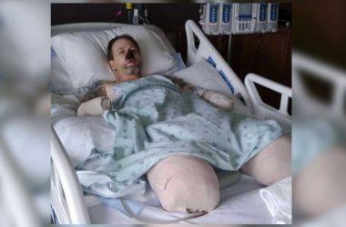 Hombre pierde piernas y brazos por lametón de un perro